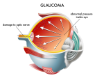 Glaucoma Study Shows Risk For Weight Lifters
